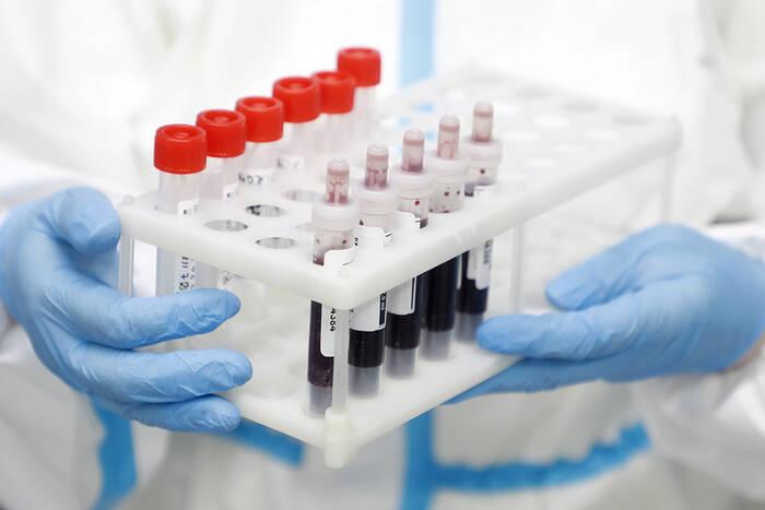 COVID-19 выявили ещё у 397 приднестровцев, 331 из них не вакцинирован