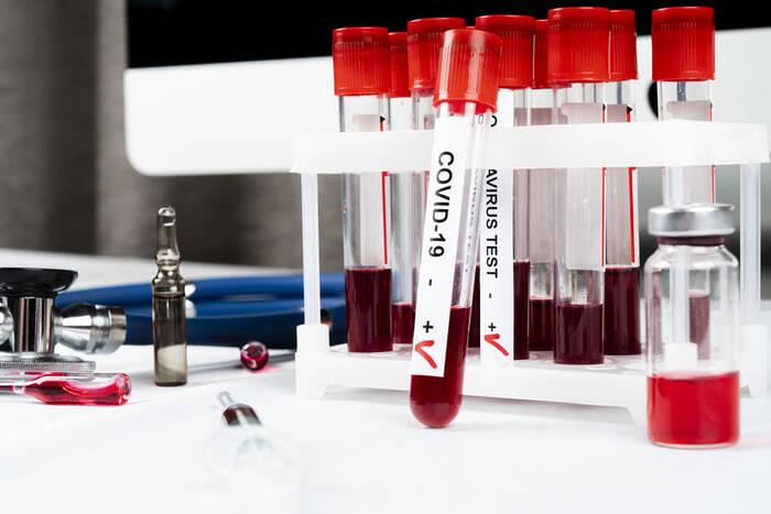 COVID-19 выявили ещё у 478 приднестровцев, 379 из них не вакцинированы