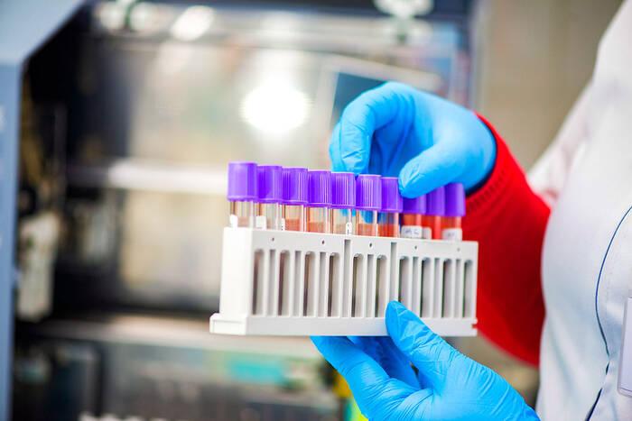 Еще 25 приднестровцев победили коронавирус