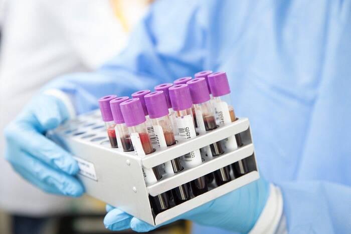 Ещё 134 приднестровца заразились коронавирусом