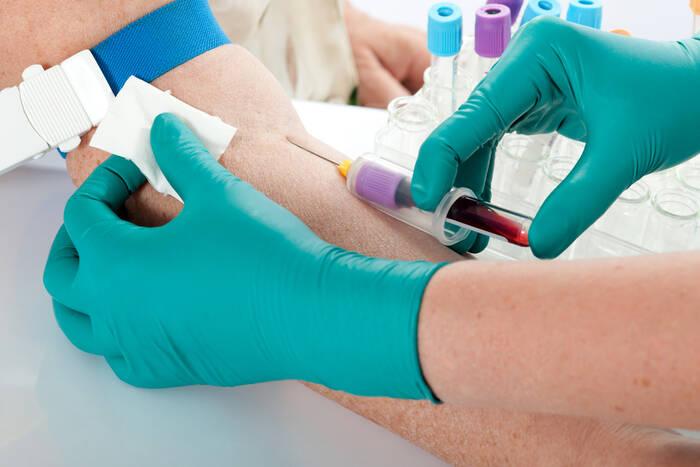 14 новых случаев гепатита С выявили во время бесплатного скрининга в РКБ