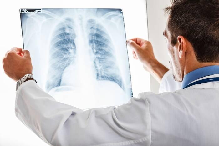 Заболеваемость туберкулёзом в Приднестровье идёт на спад