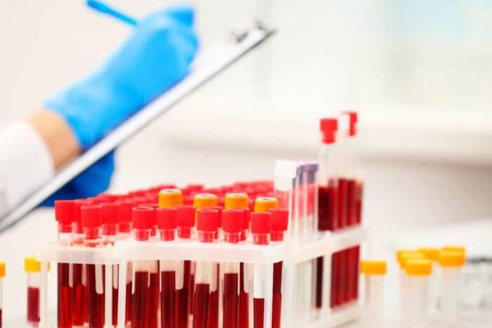 Государство направит на профилактику и лечение вирусных гепатитов почти 40 млн рублей
