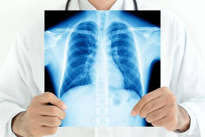 Как коронавирус повлияет на ситуацию с туберкулёзом? Мнение специалиста