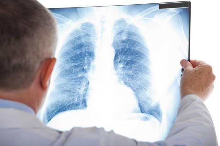 Медики призывают раз в год проходить флюорографическое обследование