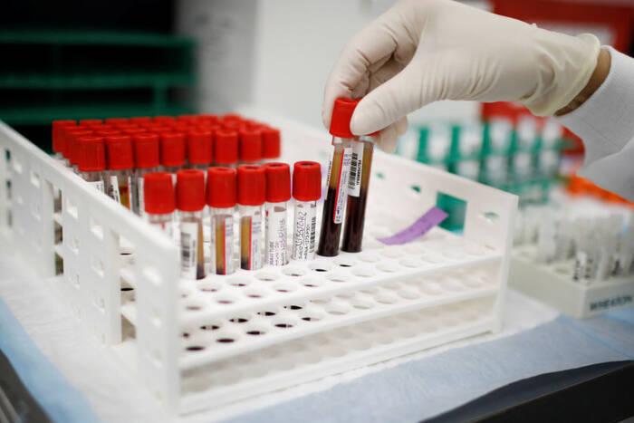 Почти 400 приднестровцев победили коронавирус