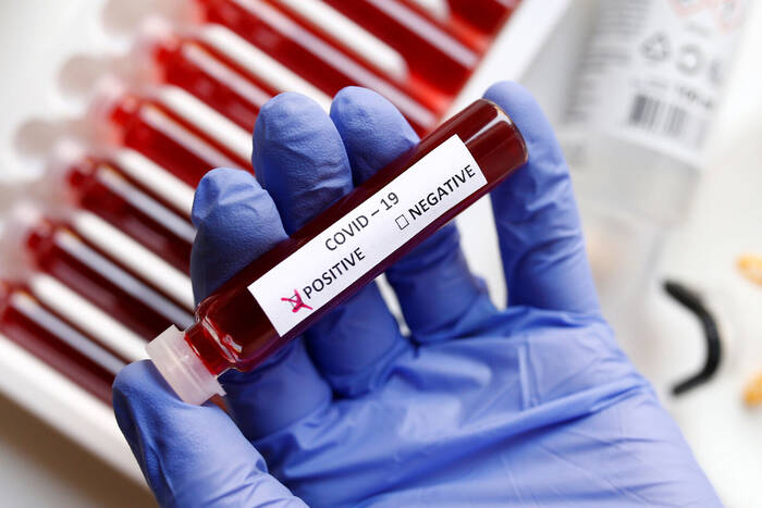 С начала пандемии в Приднестровье COVID-19 подтвердился у 22,5 тысяч человек