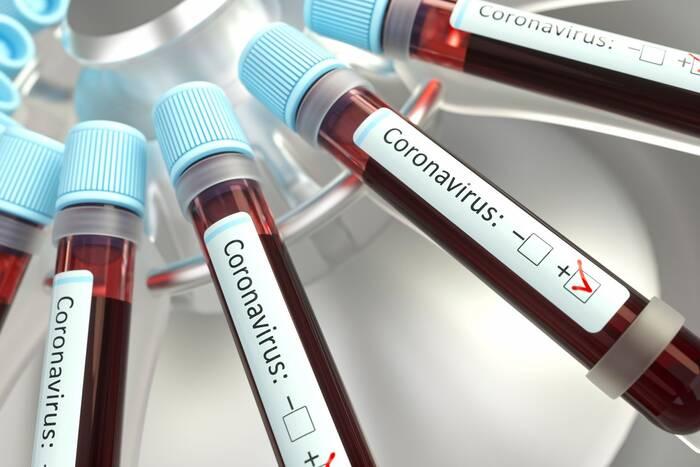 Уточнены данные жителей республики, заразившихся коронавирусом