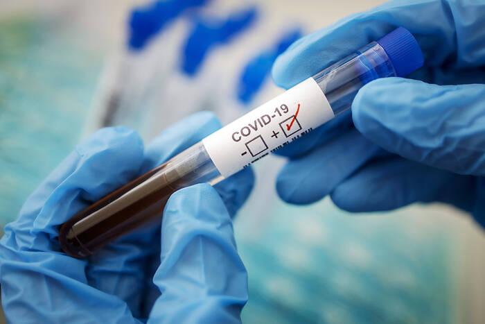В республике подтверждено 64 новых случая коронавируса