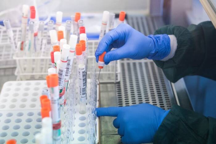Выявлено три новых случая коронавируса в республике