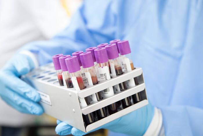 За минувшие сутки коронавирусом заболели 38 жителей республики